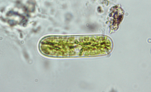 Cylindrocystis brebissonii, a relative of desmids from the family Mesotaeniaceae