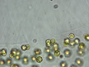 Green alga of the genus Tetraspora - note the pseudocilia (nonfunctional flagella) coming off of the side of the colony